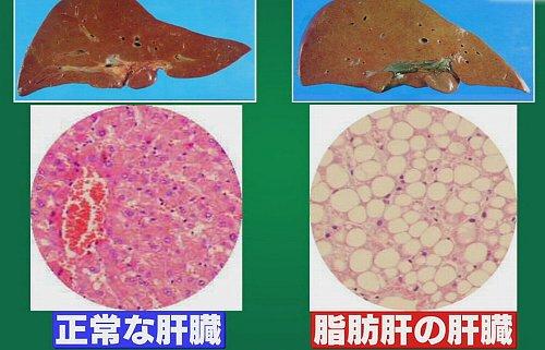 脂肪肝、脂肪に置き換わった肝臓